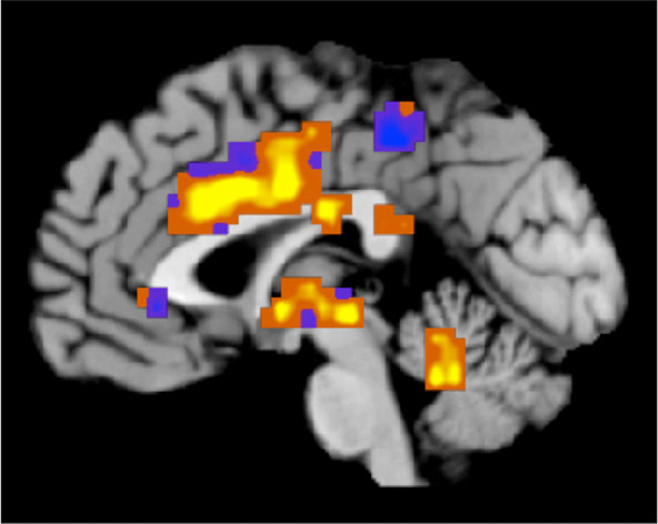 Mapping Pain in the Brain – CU Scientist Tor Wager