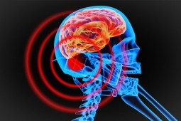 Mybroadband Radiation Brain Cellphone - courtesy Wiki