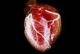 Vascular Disease & Aging Part 2