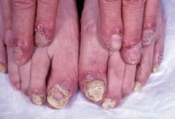 Reactive Arthritis symptoms - feet & hands (dermatology advisor)