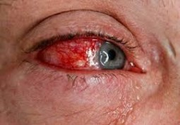Reactive Arthritis Symptom - Red Eyes