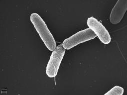Salmonella (Microscope View)